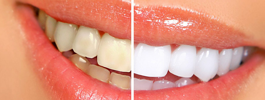 zoom-teeth-whitening-las-vegas